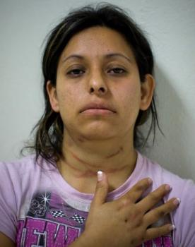 Жертва насилия в Гватемале